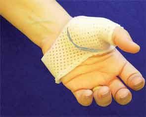 Thumb spica splint.