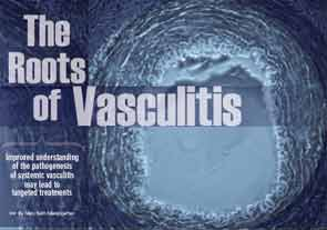 2013 ACR/ARHP Annual Meeting: The Roots of Vasculitis