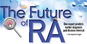 The Future of RA