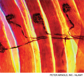 Light micrograph of a neuromuscular junction.