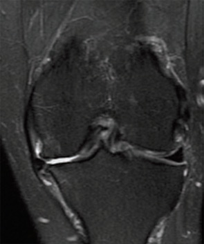 Figure 2A: A 66-year-old female with sudden medial knee pain after squatting in garden. Preoperative MRI showing medial compartment OA and meniscus extrusion.