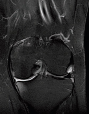 Figure 2B: Postoperative MRI showing decreased bulk of meniscus in medial gutter and less inflammation of medial capsule and MCL. Bone marrow edema is noted in medial tibia and femur.