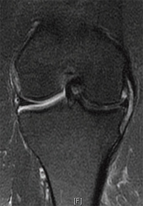 Figure 1: A 44-year-old female with medial meniscus extrusion with mechanical deformation of the medial capsule, MCL bursitis.