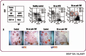 Figure 1: Unexpected effects of TNF blockade on the B-cell compartment in RA.