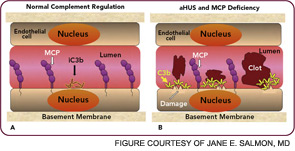 Figure 4: Atypical hemolytic uremic syndrome and deficiency of complement regulators.