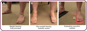 Figure 2: Evaluating the difference between standing (A) and sitting (B) is a critical part of any mechanical evaluation. If the foot can be put into a subtalar neutral position (B) and held there (C), a significant reduction in weight-bearing joint stress and symptoms is possible.