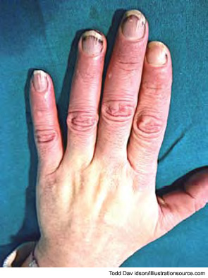 Figure 1: A 58-year-old female came to our rheumatology clinic in the winter suffering from cold hands (intensive Raynaud's phenomenon). Symptoms began in 2004 and medical history is negative.