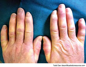 Figure 3: The most common initial symptom and clinical sign of systemic sclerosis is symmetrical Raynaud's phenomenon.