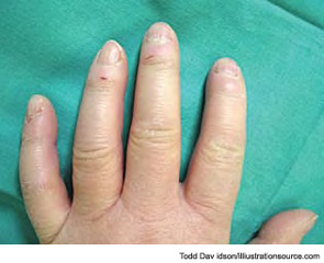 Figure 4: The insidious swelling of the distal extremities (e.g., puffy fingers), followed by gradual thickening of the skin of the fingers, characterize the progression of systemic sclerosis versus the fibrotic phase.