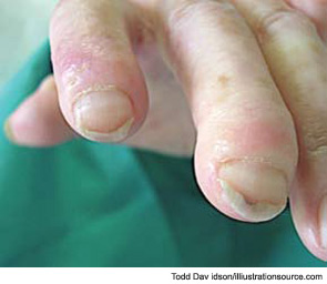 Figure 9: Typical skin trophic lesions are visible in the finger of an SSC patient with an active capillaroscopic pattern.