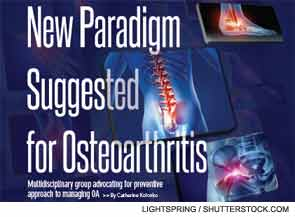 New Paradigm Suggested for Osteoarthritis