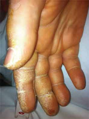 Thickened and cracked skin, most pronounced on the palmar aspect of the thumb, index, and middle fingers, consistent with mechanic's hands
