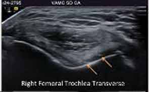 High-resolution ultrasound applied to detection of CPPD