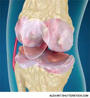 Addressing Inflammatory Bone Disease