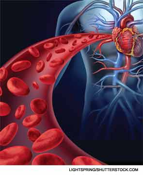 Patients taking 0.5 mg/d of colchicine or placebo for at least two years had about a 65% lower risk of any acute coronary syndrome, heart attack or stroke.