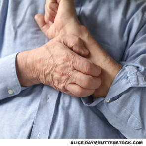 The etiology of itch is poorly defined.