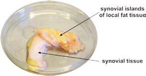 Figure 3: Example of fat tissue in close proximity to synovial tissue.