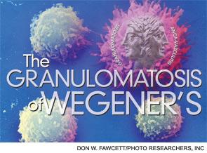 The Granulomatosis of Wegener's
