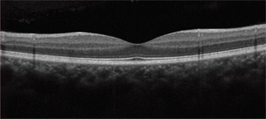 Figure 3: SD-OCT cross-sectional images of the retina.