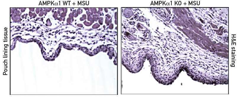 Figure 1: Paraffin sections or air pouch tissues with hematoxylin and eosin (H&E) staining reveal increased MSU crystal-induced inflammation in AMPKα1 knockout (KO) mice. Courtesy Robert Terkeltaub, MD