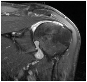 Figure 2: Left shoulder oblique coronal T2-weighted fat-suppressed MR image
