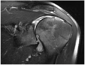 Figure 3: Left shoulder oblique coronal T1-weighted fat-suppressed MR image with contrast