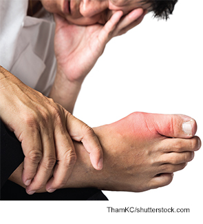 Changes in gout