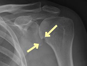 Figure 1: Left shoulder anteroposterior radiograph