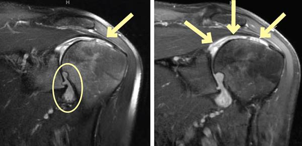 Figure 2: Left shoulder oblique coronal T2-weighted fat-suppressed MR image, Figure 3: Left shoulder oblique coronal T1-weighted fat-suppressed MR image with contrast
